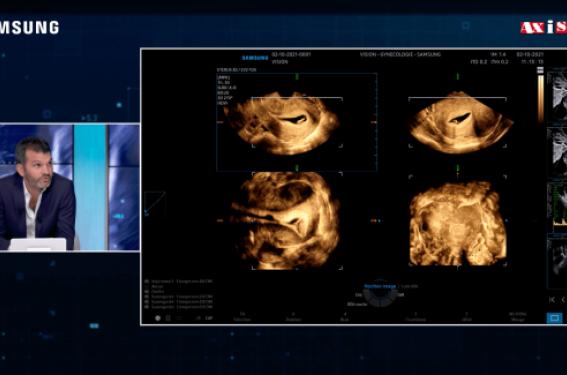 Exploration de la cavité utérine chez une femme infertile - L'HSSN vs l'HSC en 1re intention